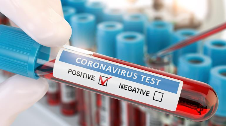 Coronavirus 2019 nCoV positive blood test. Blood sample in lhand of doctor  in laboratory. 3d illustration